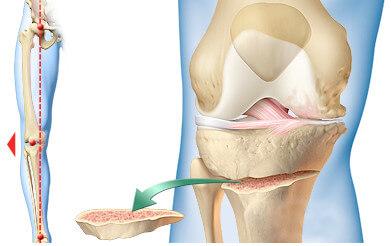 Osteoton – effetti collaterali – truffa – fa male – controindicazioni – pericoloso
